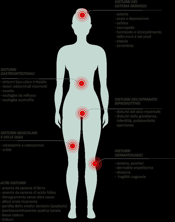 Disturbi del sistema nervoso. Disturbi dermatologici. Disturbi dell'apparato riproduttivo. Disturbi muscolari e delle ossa.